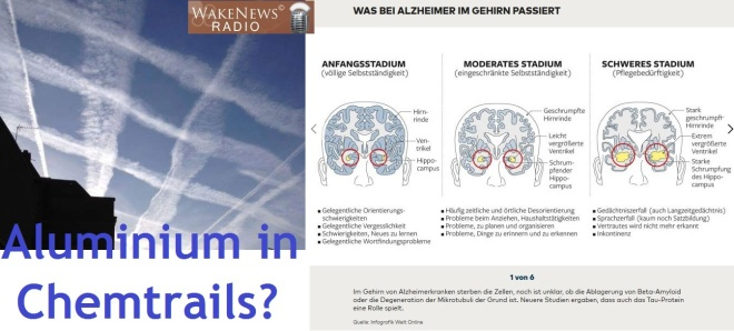 Alzheimer-Chemtrails